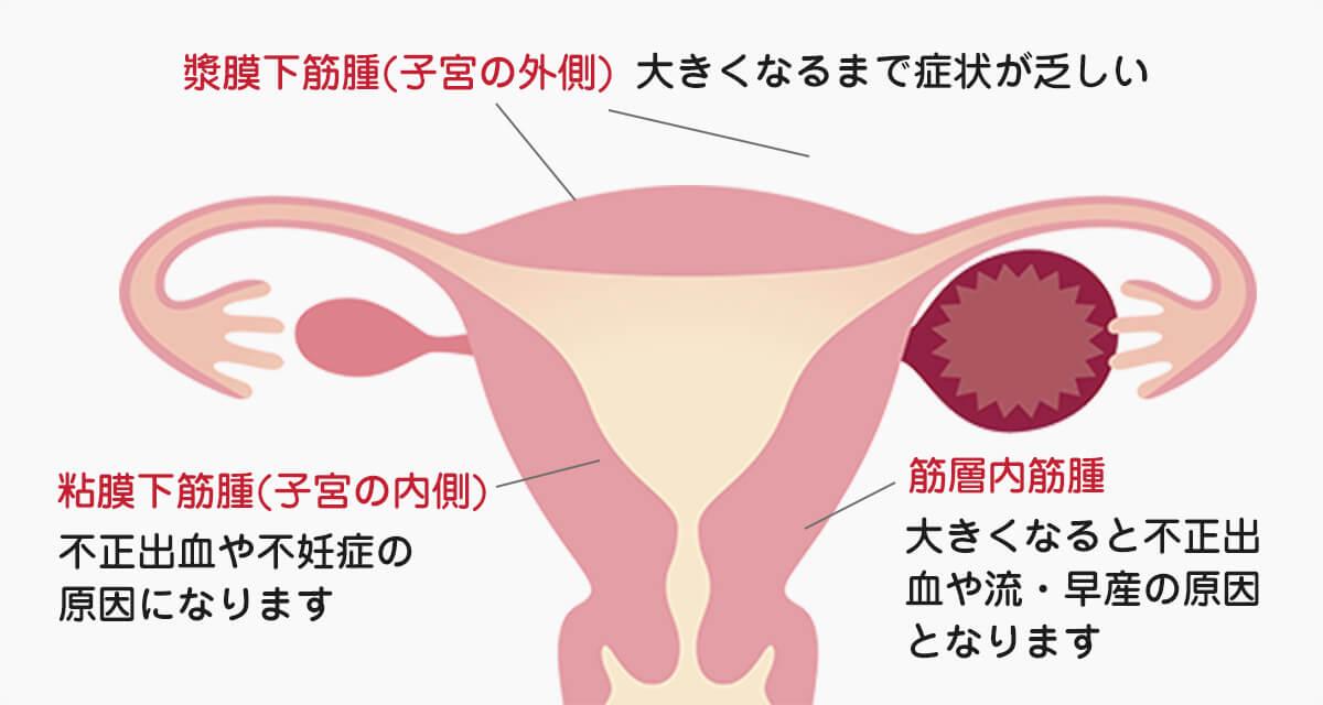 症状 子宮 筋腫