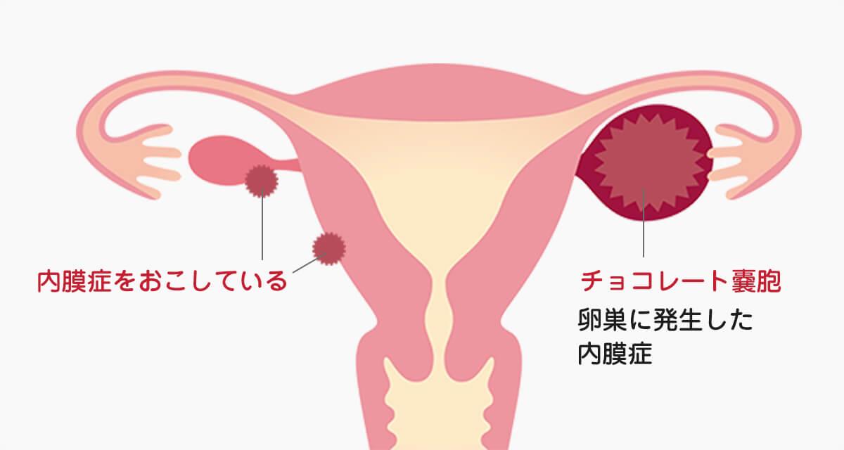 内 症状 症 膜 子宮 増殖